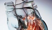 Hybrid Interactive Heart