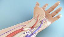 Treatment for arteriovenous fistulas