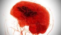 Hemorrhagic stroke